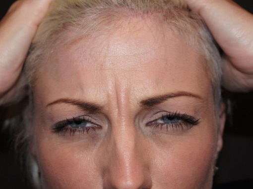 Anti Wrinkle Injections Gold Coast Brisbane