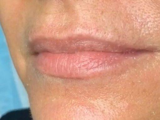 Lip Fillers Gold Coast Brisbane